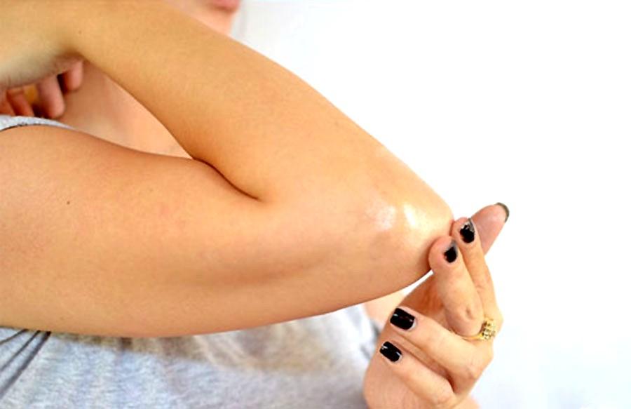 Почему на пальцах рук растут шишки