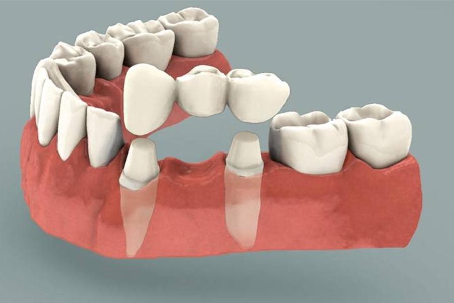 Особенности зубного протезирования и виды зубных протезов