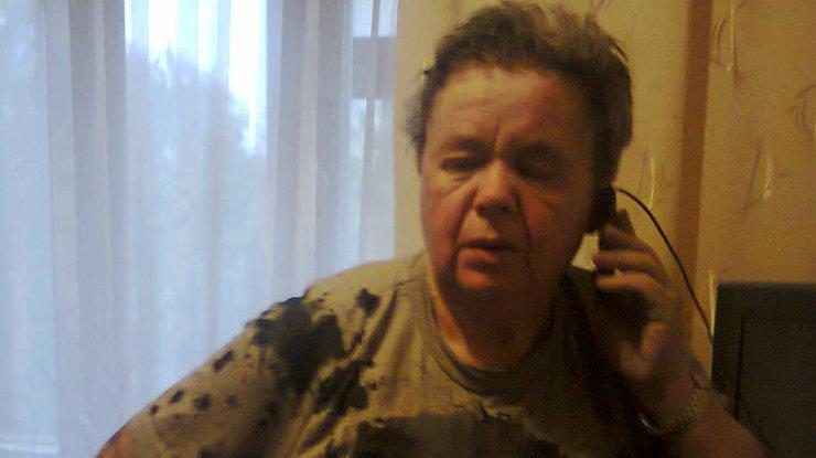 66-летнюю жительницу Ровно облили кислотой по политическим мотивам