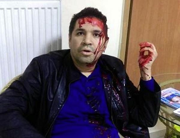 Кандидат в мэры Харькова Родзинский избит неизвестным в балаклаве