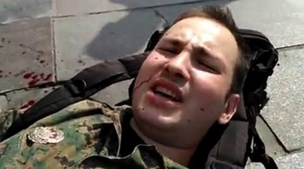 В Киеве на добровольца ОУН напали с ножом, сейчас он в реанимации